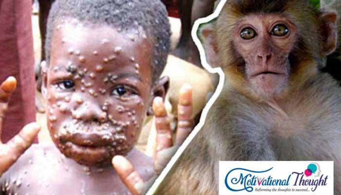 """""""Monkey Virus"""" नाम का नया वायरस, क्या है लक्षण?"""